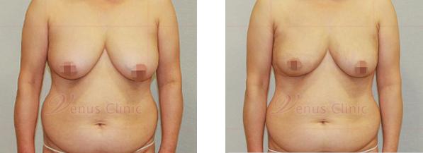 여자 유방(Female breasts) 지방흡입, 유방축소