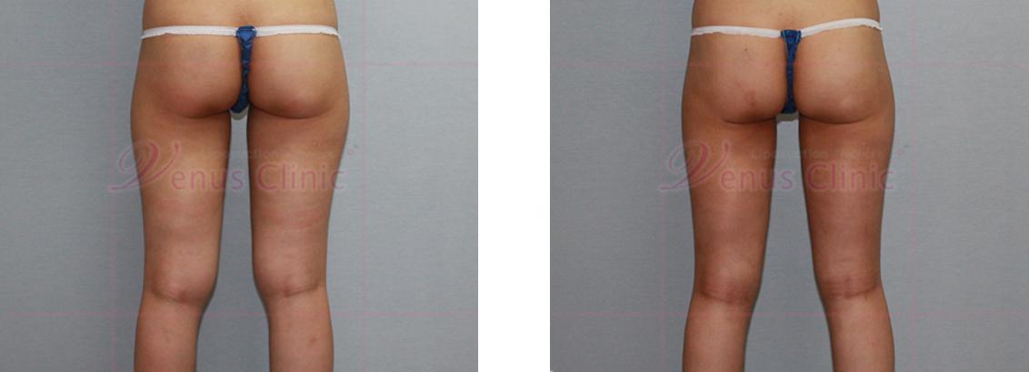 무릎(knees) 지방흡입1
