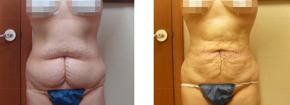 여자 하복부(Female lower abdomen) 지방흡입