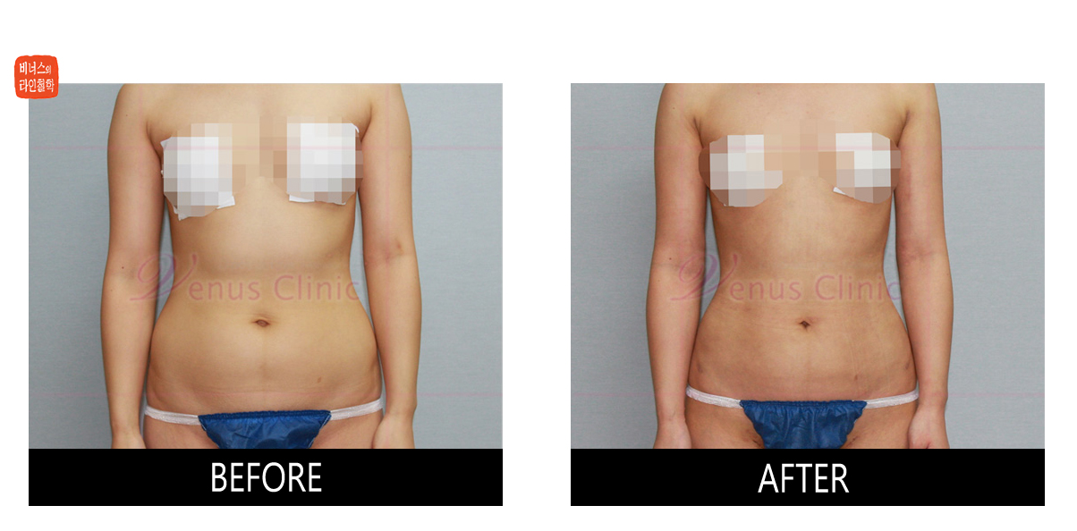 Smooth result of Liposuction