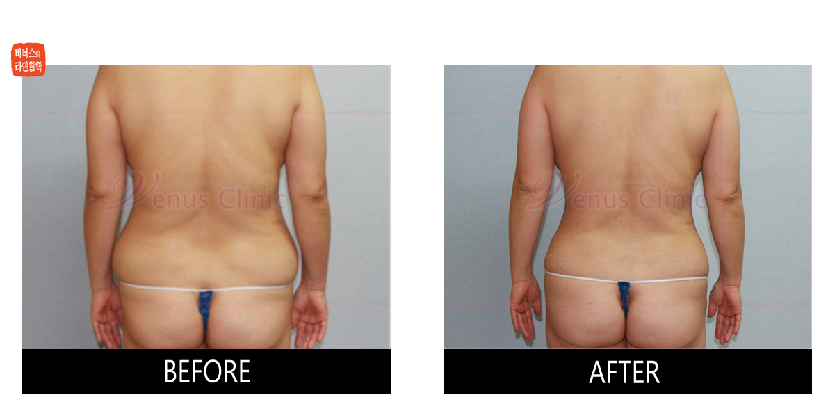 rear view of large volume liposuction